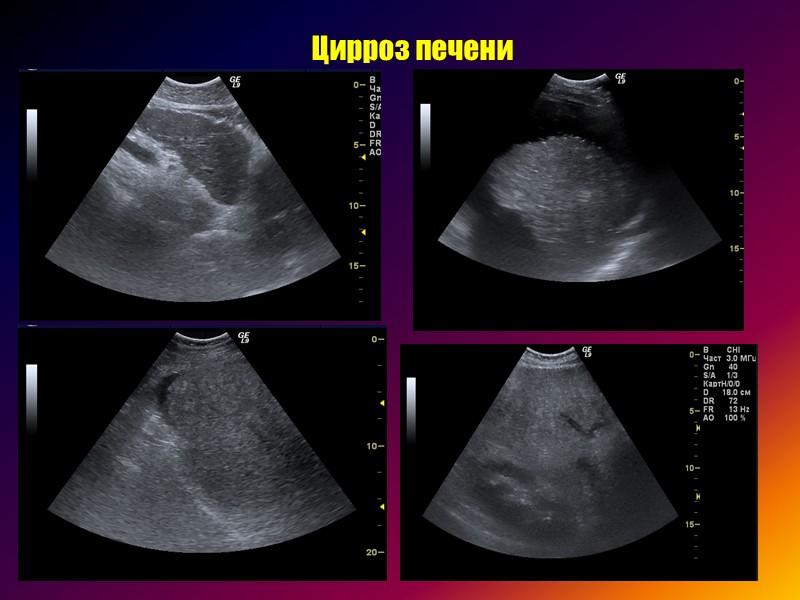 >Хронический вирусный гепатит  Фиброз печени
